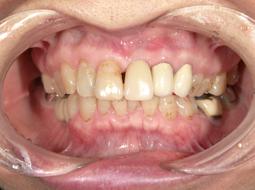 上顎前歯 after